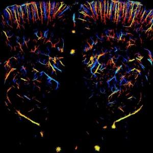 Ultrasound Scan of Rat Brain